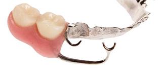 特殊入れ歯