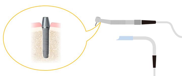 インプラントの埋め込み手術
