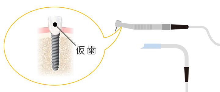インプラントと骨の結合期間