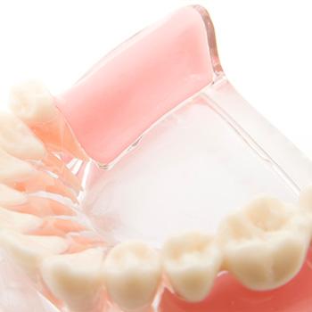 通常入れ歯