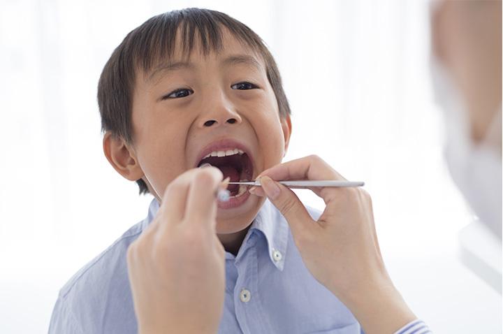 お子様 歯科治療