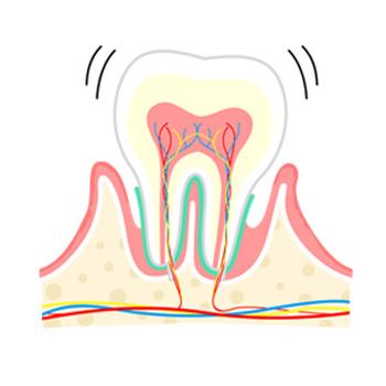 歯周病:中期